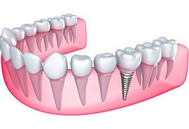 Rialto dental implants