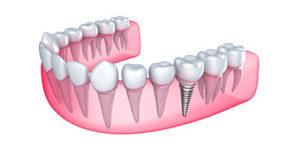 Dental implant Rialto