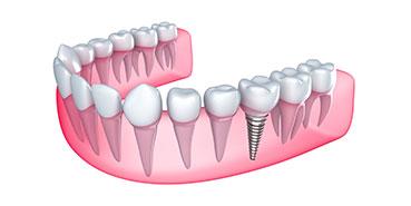 Rialto dental implants