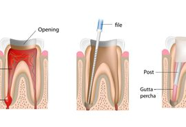 Rialto root canal