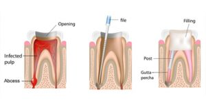 Root canal surgery Rialto
