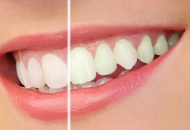 Rialto teeth whitening