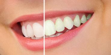 Rialto teeth whitening