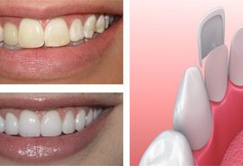 Veneers treatment rialto