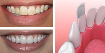 Dental veneers Rialto