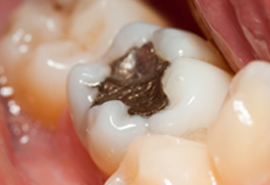 Rialto Dental Fillings