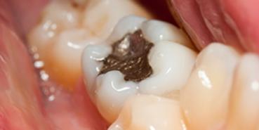 Rialto Dental Fillings