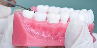 Rialto dental crowns