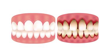 Rialto gum treatments