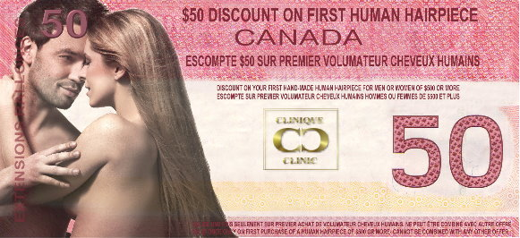 $50 Discount Coupon on The Hair Clinic's Hair Replacement System
