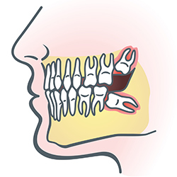 Wisdom Teeth | Cosmetic Dentistry Center MA