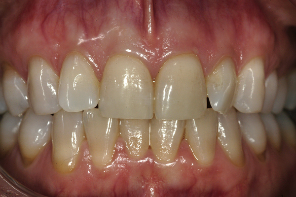 Veneers Before and After Photos Boston MA | Newton MA