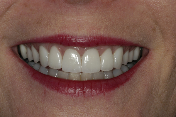 Dental Veneers Before and After Photos Boston MA | Newton MA