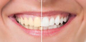 Whitening Teeth | Cosmetic Dentistry Center