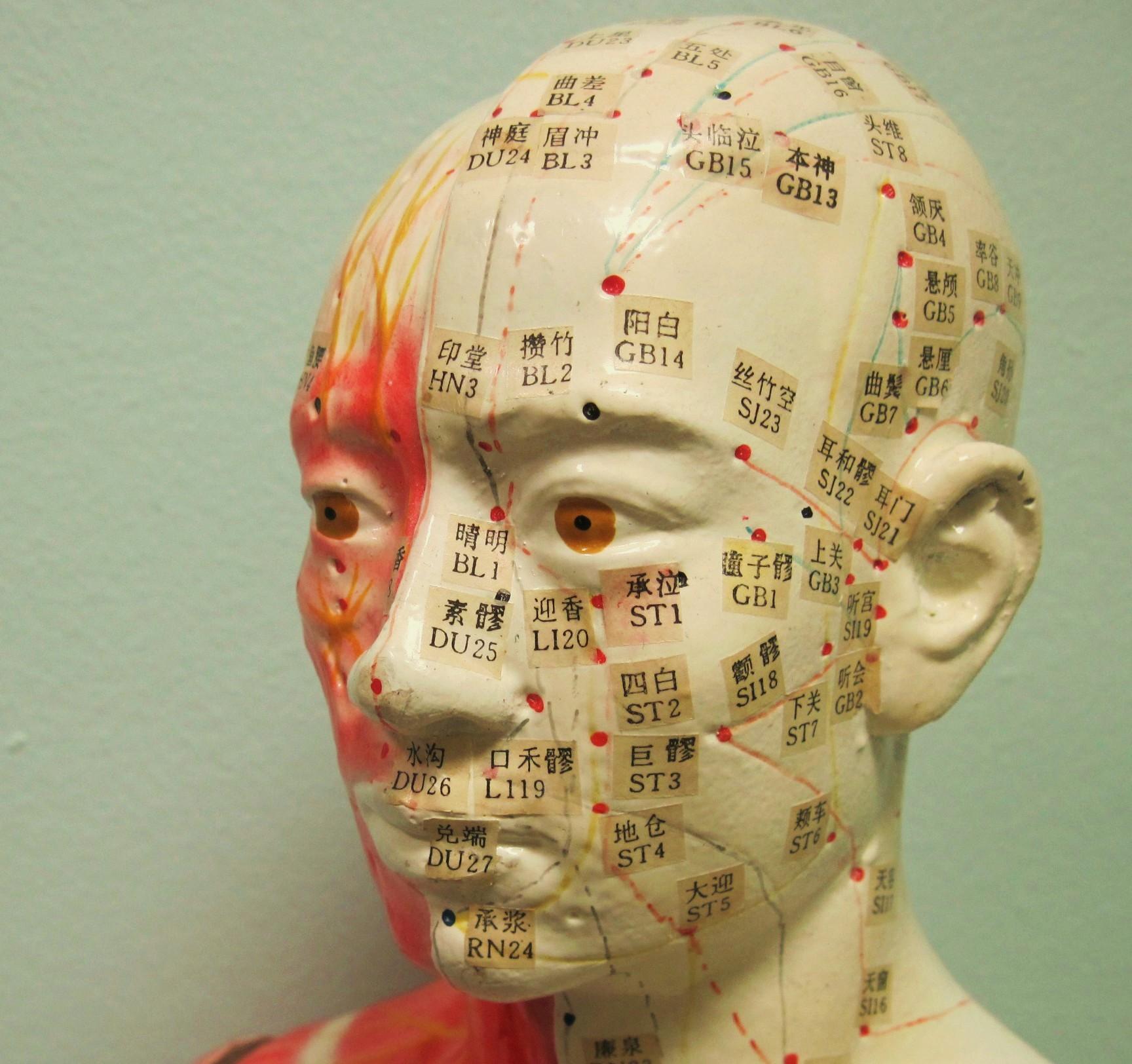 acupunture-head