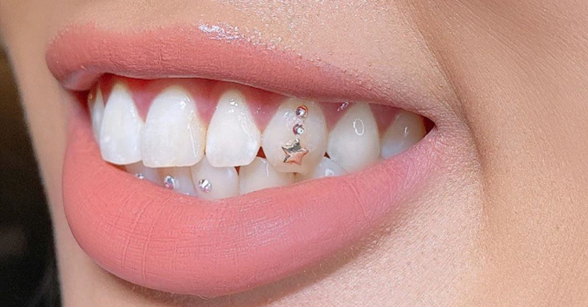 Everything You Need to Know About Tooth Gems