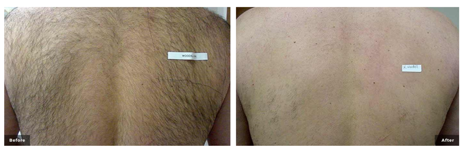 Laser hair removal men's back before and after images