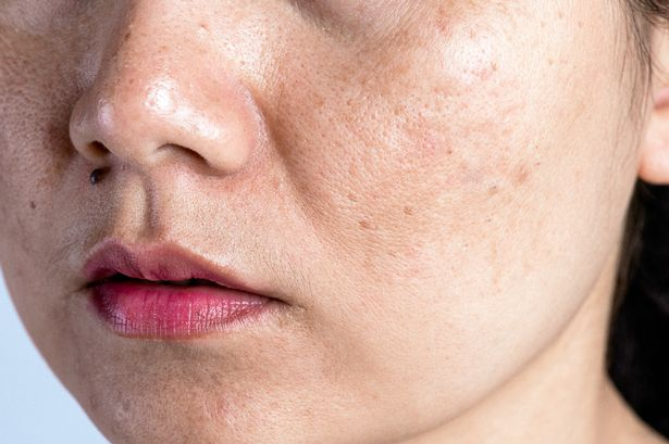 Brown Age Spots and Pigmentation