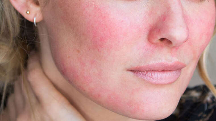 Facial Redness (Rosacea)