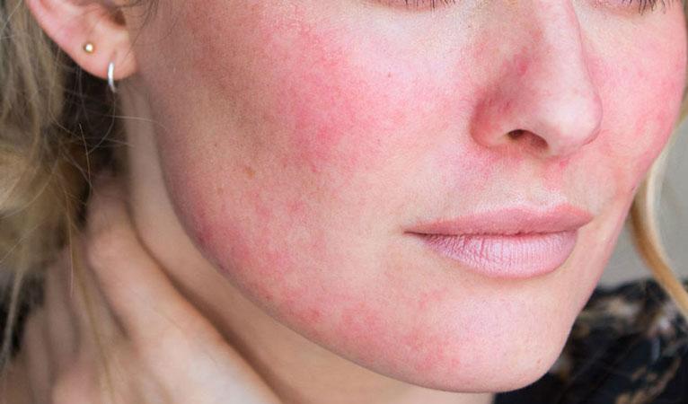 Facial Redness (Rosacea)