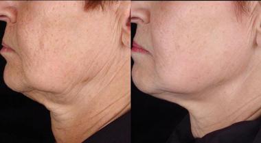 Titan skin tightening