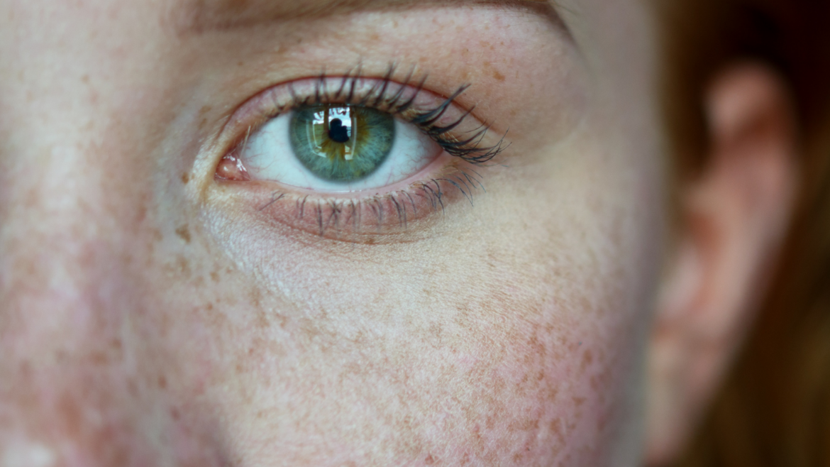 Causes and Treatments For Skin Discoloration