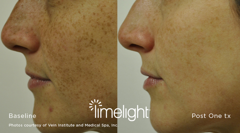 Limelight before and after