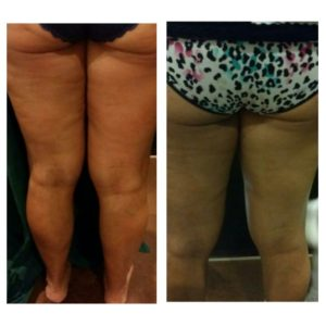Radio frequency skin tighening treatments in South Tampa