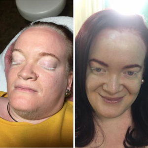 dermaplaning before and after tampa spa