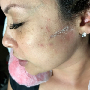 tampa spa dermaplaning for exfoliation