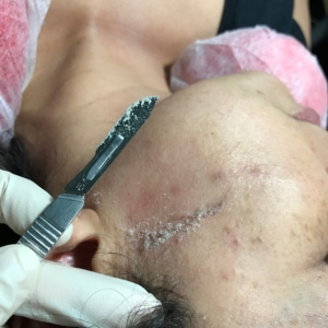 tampa spa dermaplaning treatments