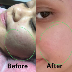 PRP Facial Rejuvenation Tampa