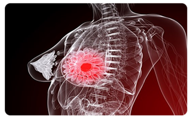 hormones cause breast cancer