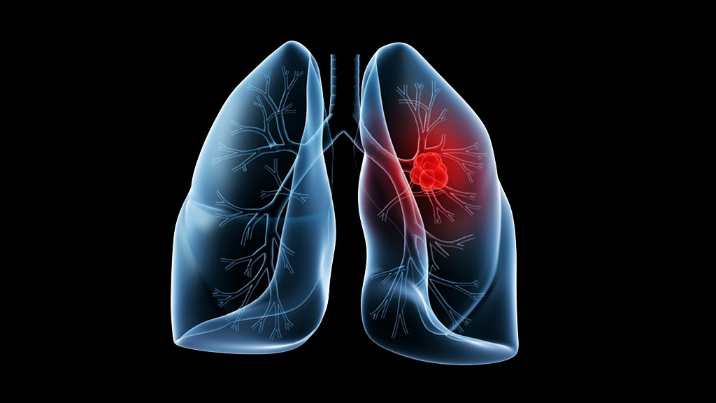 Multinational Lung Cancer Diagnosis & Control Project in Ethiopia