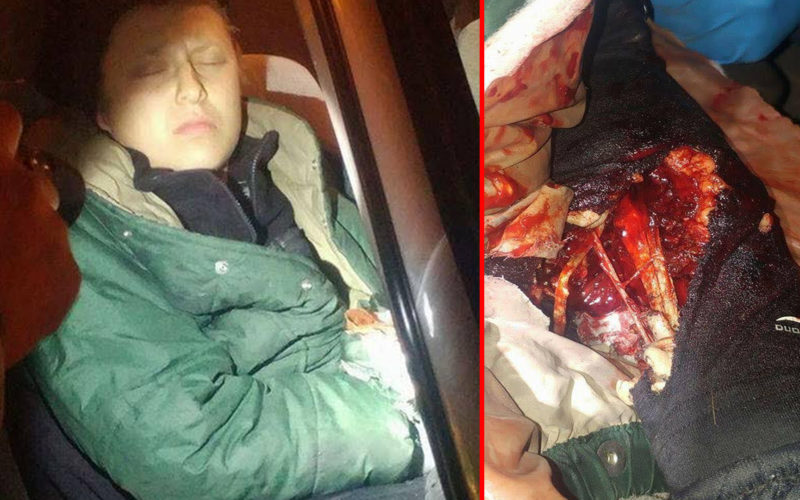 NoDAPL Protestor Faces Possible Loss Of Her Arm After Police Attack