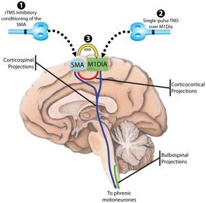 TMS brain diagram - www.24-7Press