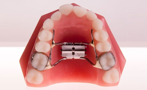 Dental Growth Expander