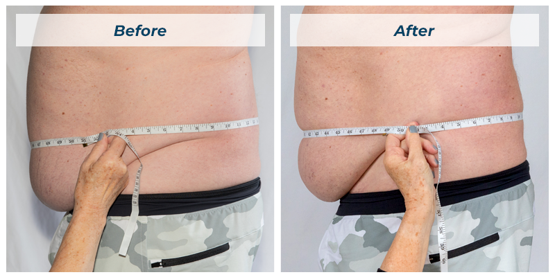 Before/After waist