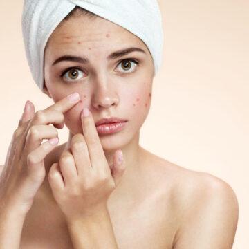 Acne/Acne Scars