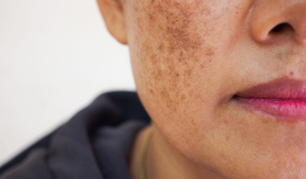 Dull/Damaged Skin