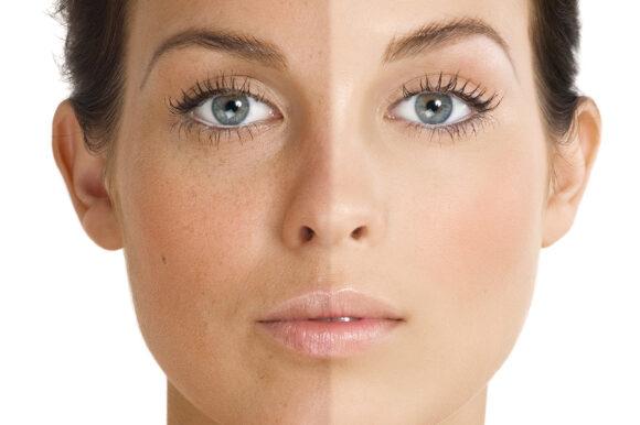 Sun Damage & Pigmentation