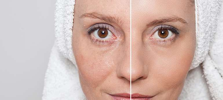 woman before and after Bellava MedAesthetics and Plastic Surgery Center in Bedford Hills, NY