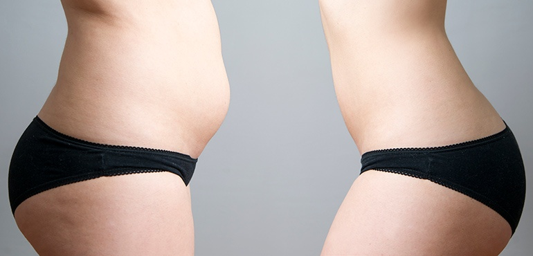 tummy before and after Bellava MedAesthetics and Plastic Surgery Center in Bedford Hills, NY
