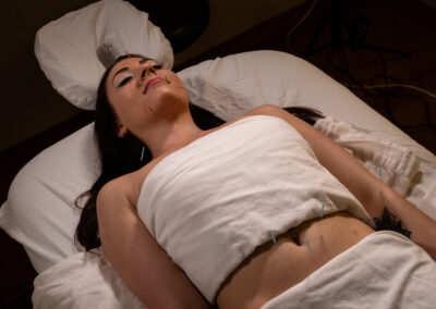 Acupuncture therapy session with Claire Bellava MedAesthetics and Plastic Surgery Center in Bedford Hills, NY