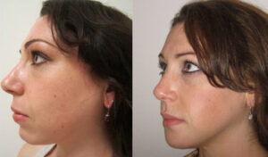 chin augmentation by Dr. Chang Soo Kim before and after Bellava MedAesthetics & Plastic Surgery Center in Bedford Hills, NY