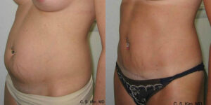 mini tummy tuck by Dr. Chang Soo Kim before and after Bellava MedAesthetics & Plastic Surgery Center in Bedford Hills, NY