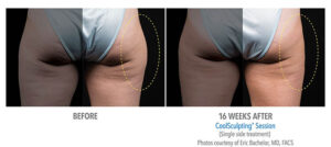 CoolSculpting thighs before and after Bellava MedAesthetics & Plastic Surgery Center in Bedford Hills, NY