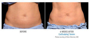 CoolSculpting midsection before and after Bellava MedAesthetics & Plastic Surgery Center in Bedford Hills, NY