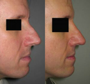 rhinoplasty nose by Dr. Chang Soo KimBellava MedAesthetics & Plastic Surgery Center in Bedford Hills, NY