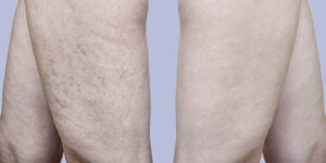 veins sclerotherapy radiofrequency ablation before and after Bellava MedAesthetics & Plastic Surgery Center in Bedford Hills, NY